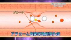 インフォマーシャル用CG作例(血管内プラークと血流)