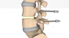 整形外科椎間板置換手術のCG