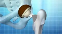 大腿骨頭壊死の手術術式CG