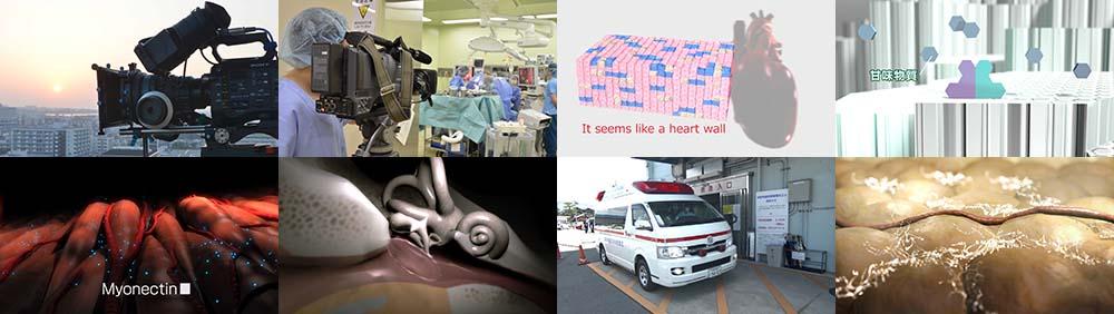 医療映像制作事例