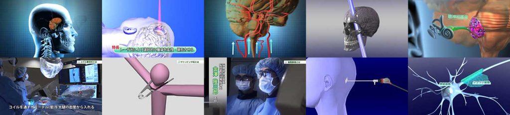 脳神経外科映像制作